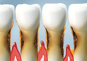 O'Fallon dentist | Troy dentist | gum disease treatment | bleeding gums |  Dr Trezek