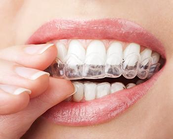 O'Fallon dentist | Troy dentist | clear braces | Invisalign | Dr Trezek
